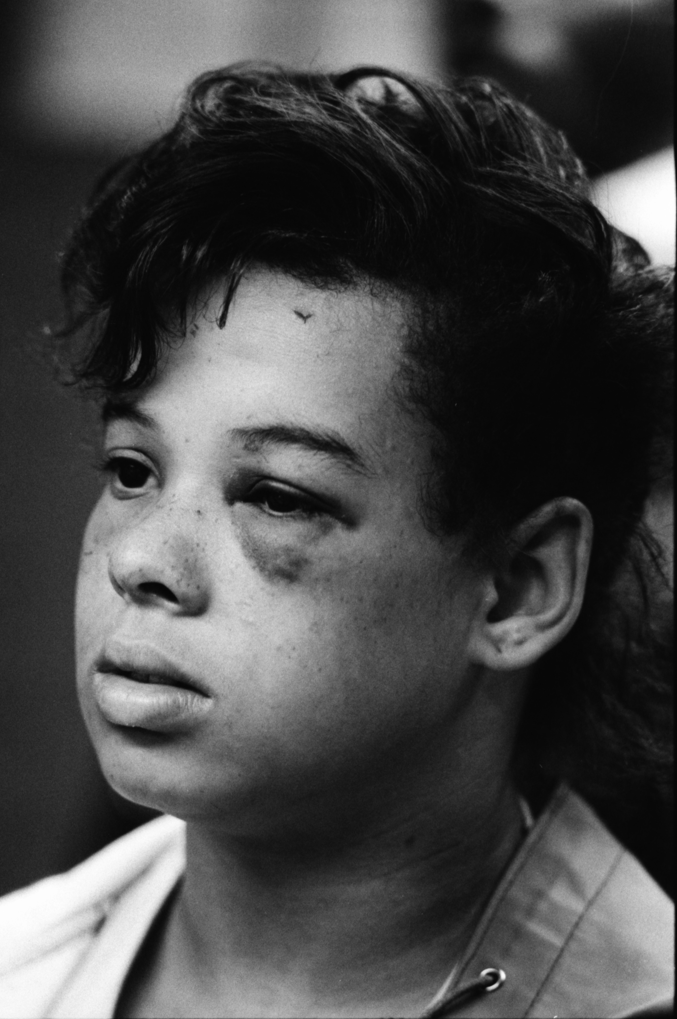 Injured Huron High School Student Yvette Ashford at Ann Arbor Public Schools Meeting on Bus Crash, August 1987 image